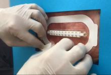 """Photo of El increíble invento para suturar heridas como una bolsa """"Ziploc"""""""