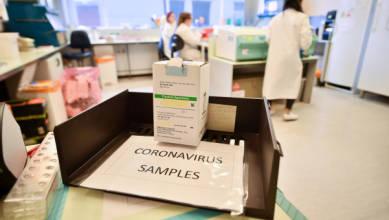 Photo of Las directrices de prueba COVID-19 actualizadas de la FDA no permiten específicamente la recolección de muestras en el hogar